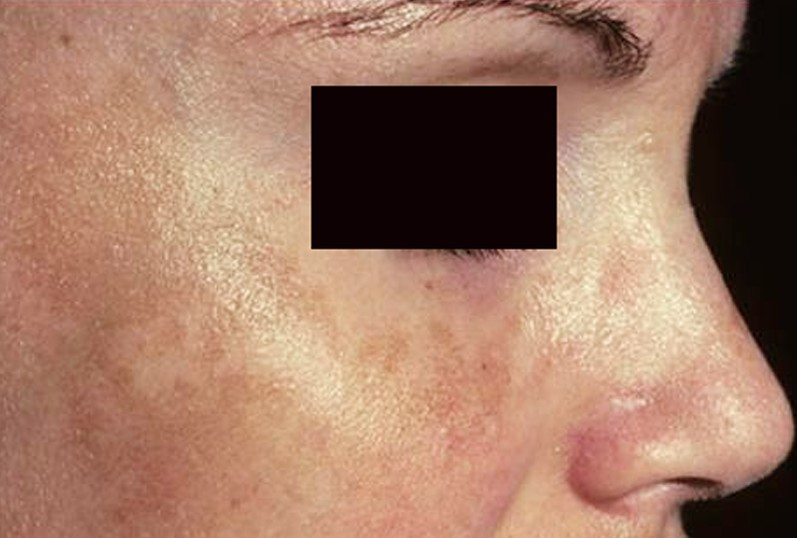 brown spots on skin pictures 2