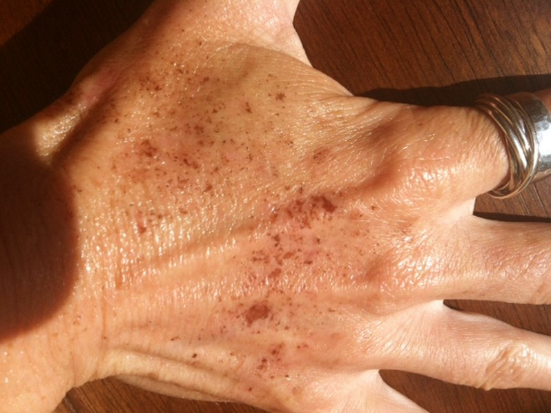 brown spots on skin pictures 3