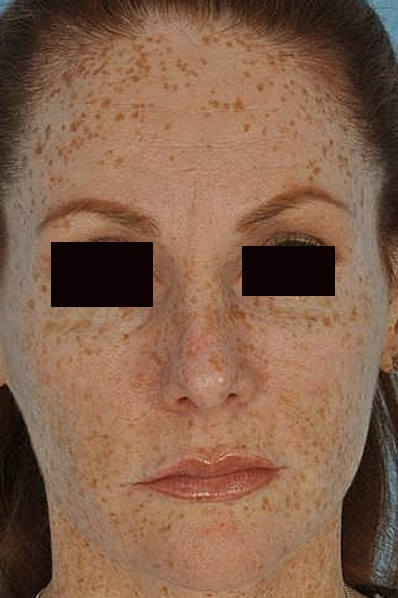 brown spots on skin pictures 7