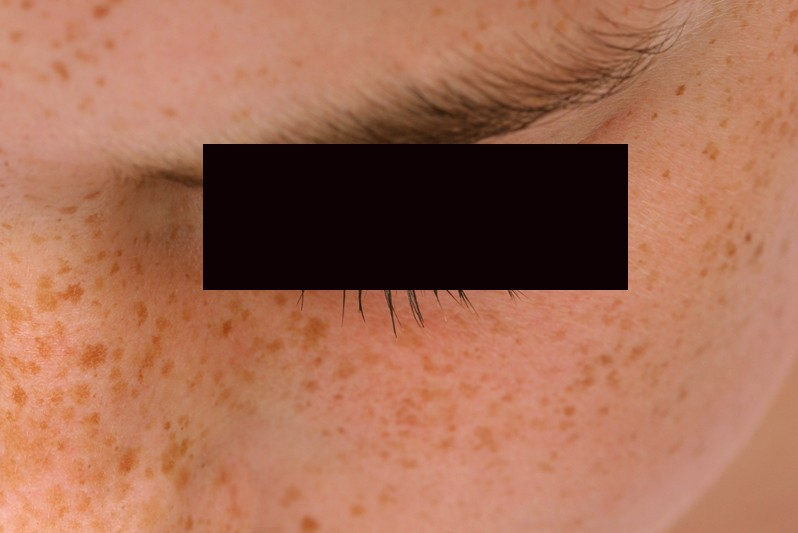 brown spots on skin pictures 8