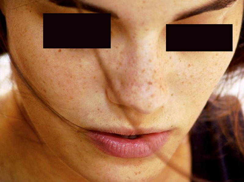brown spots on skin pictures