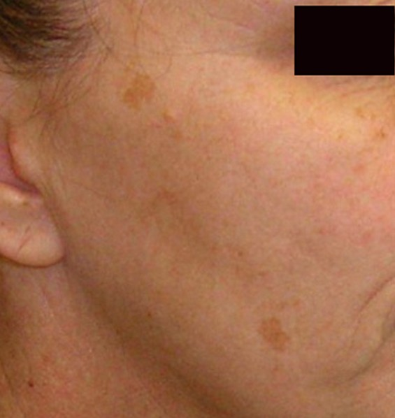 Brown Spots on Skin - Pictures, Causes, Home Remedies ...