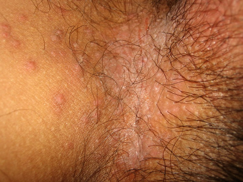 bumps on inner thigh pictures