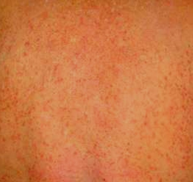 Chlorine Rash Pictures Causes And Treatments