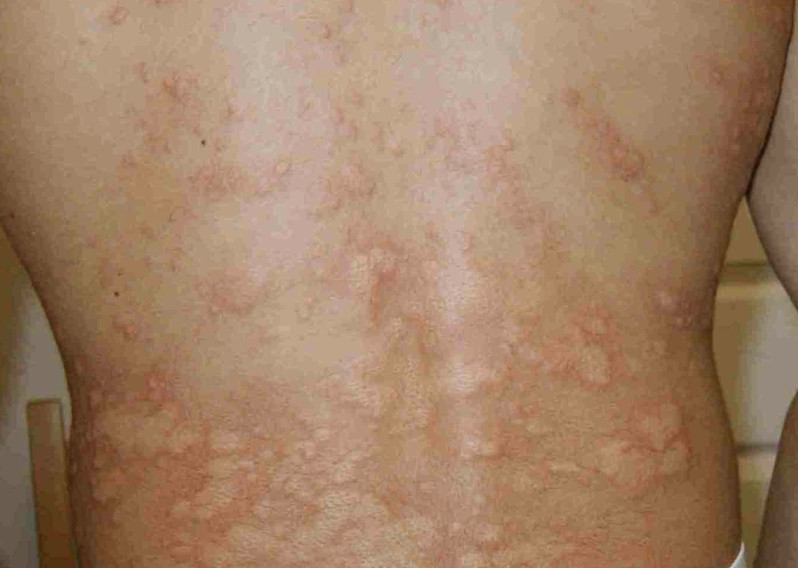 cold urticaria pictures 2