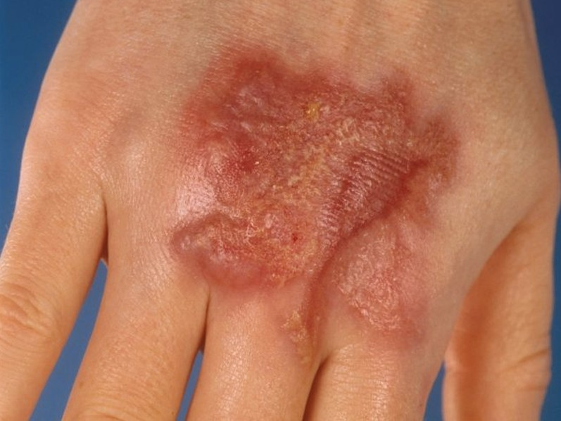 ecthyma gangrenosum pictures 5