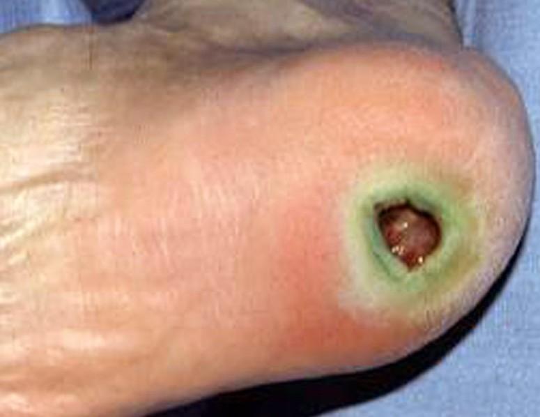 ecthyma gangrenosum pictures 6