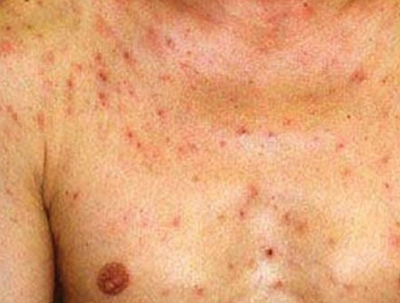 Eosinophilic Folliculitis Pictures Symptoms Diagnosis