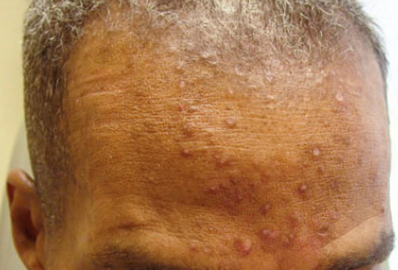 steroid induced rosacea symptoms