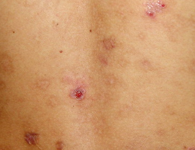 picture of folliculitis #11