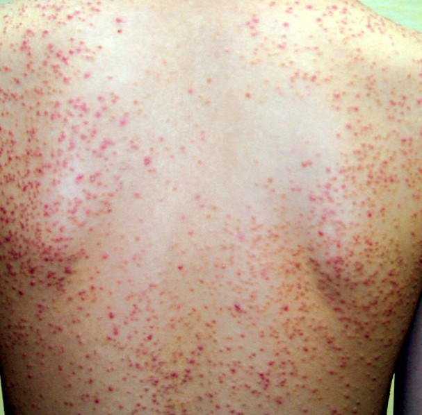 Eosinophilic Folliculitis - Pictures, Symptoms, Diagnosis ...