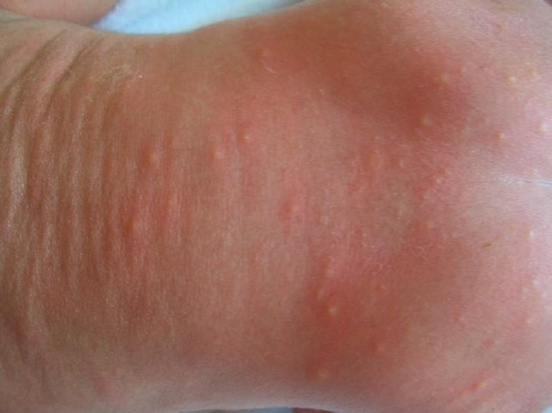 Baby Acne (Erythema Toxicum Neonatorum), newborn rash ...