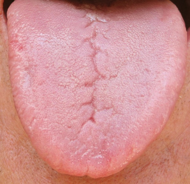 Fissured Tongue - Pictures, Symptoms, Causes, Treatment ... B12 Deficiency