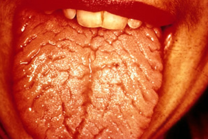 fissured tongue pictures