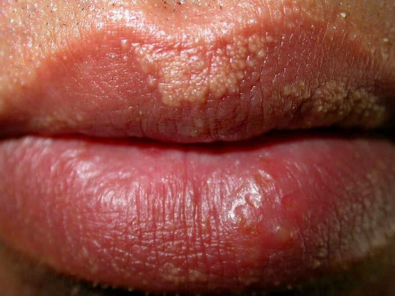 fordyce spots on lips pictures 4