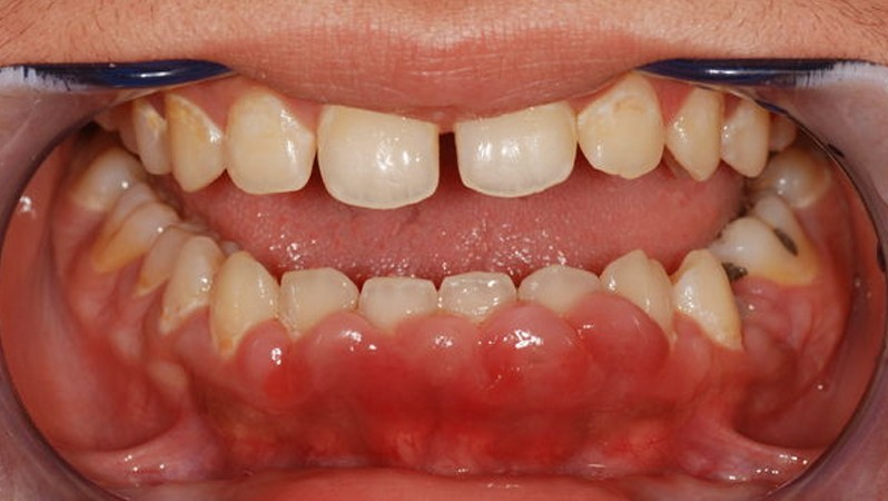 gingival hyperplasia pictures 5