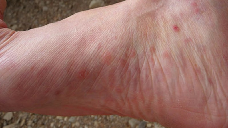 Itchy Feet | Causes, Symptoms, and Diagnosis
