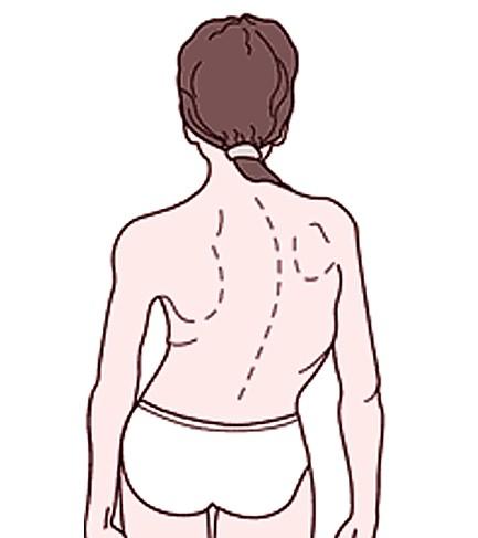 levoscoliosis pictures