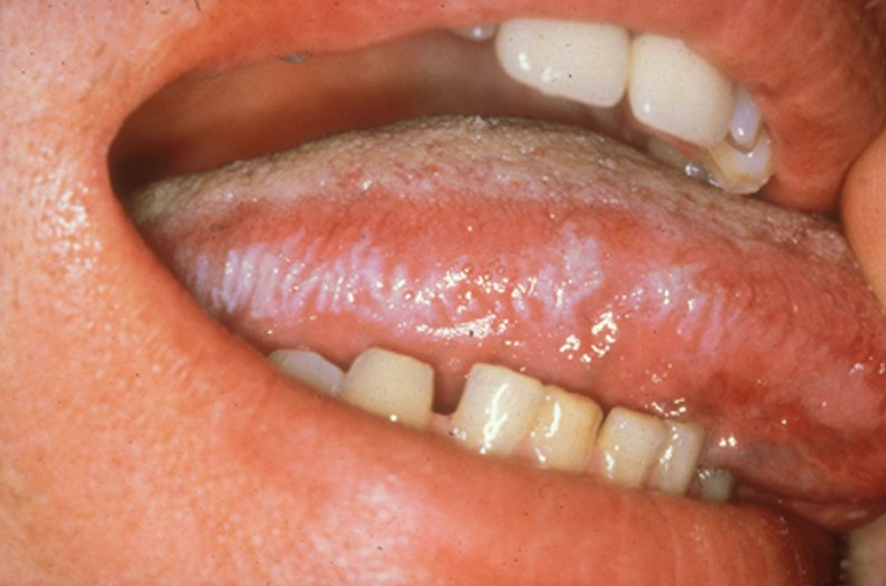 oral hairy leukoplakia pictures 3