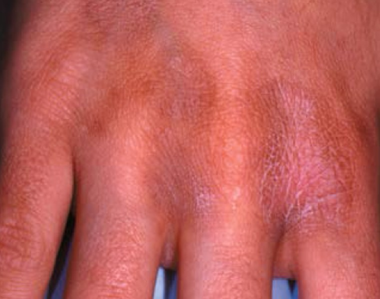phytophotodermatitis pictures 2