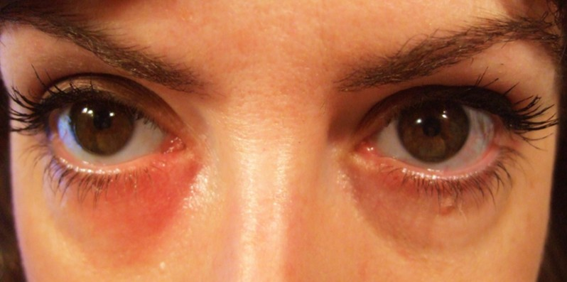 Rash around the Eyes: Causes and Natural Treatments
