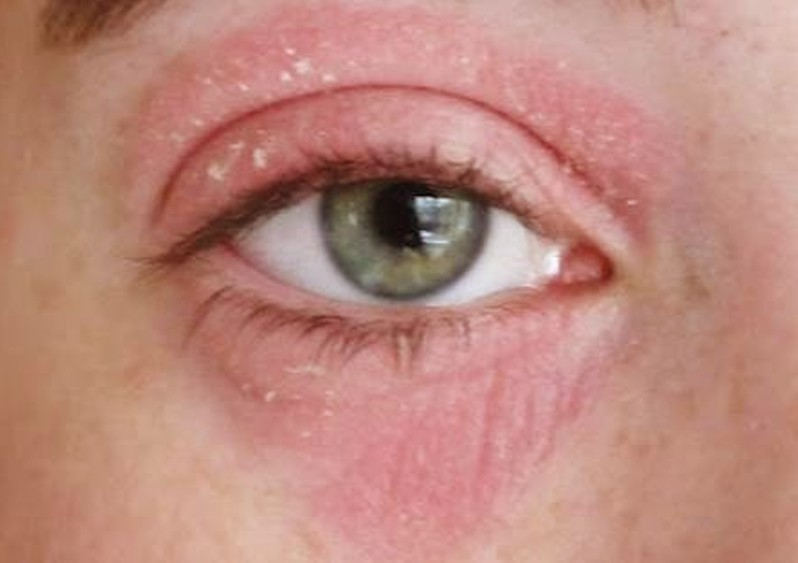 Rash around mouth and eyes - Dermatology - MedHelp