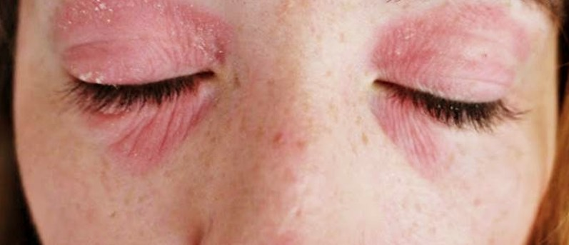 Dry Skin Around Eyes | MD-Health.com