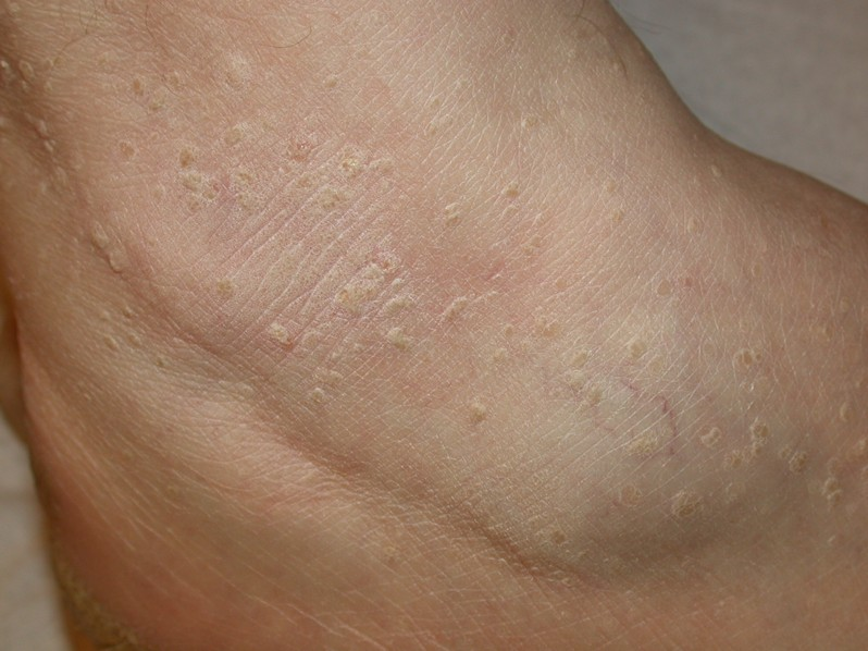 stucco keratosis pictures