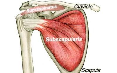 subscapularis tear