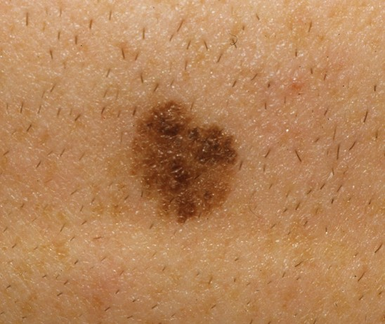 superficial spreading melanoma pictures 3