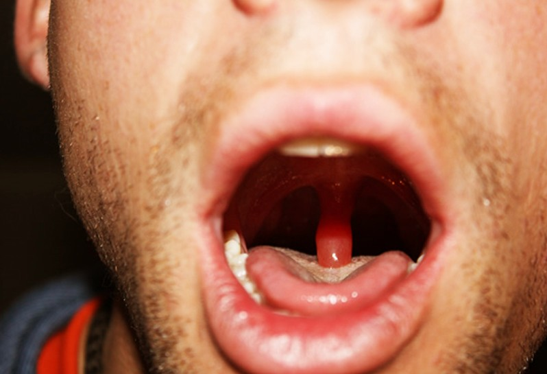 swollen uvula pictures 2