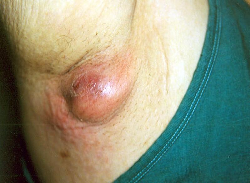 armpit cyst