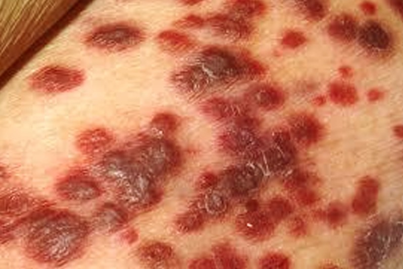 Look for Your Rash in These Rash Pictures - Verywell