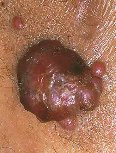 bacillary angiomatosis pictures 3