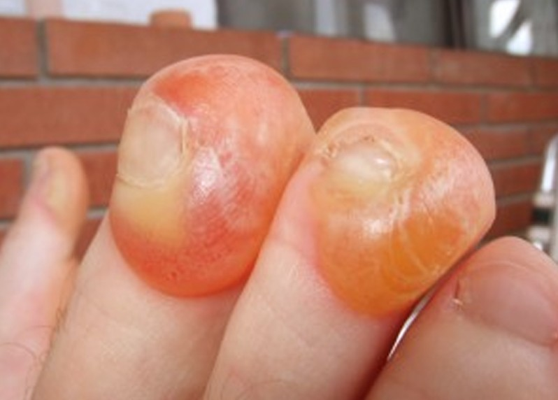 blisters on toes pictures 2