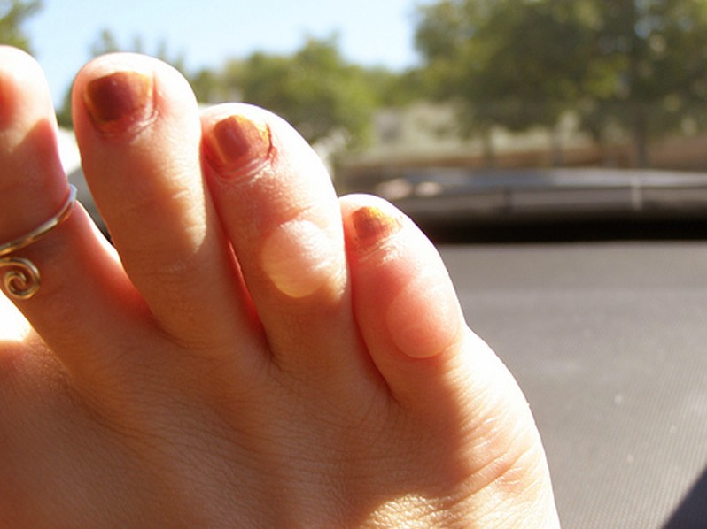 blisters on toes pictures 4