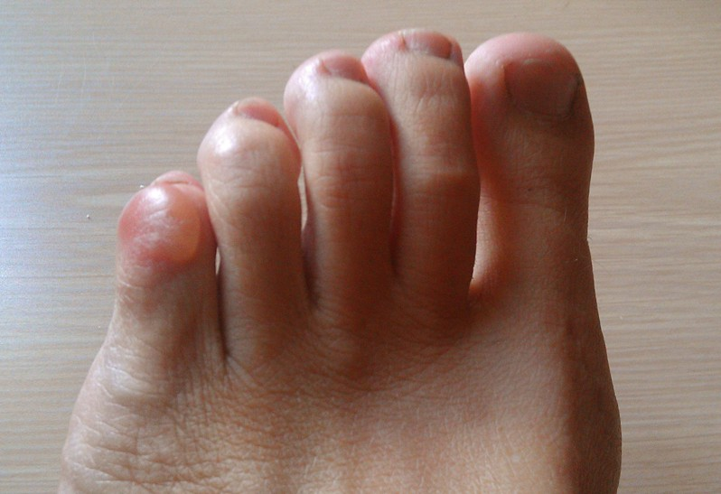 blisters on toes