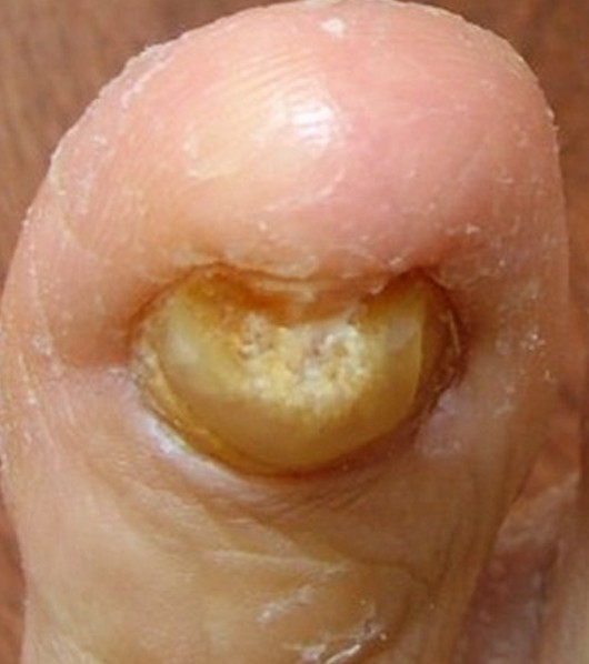 brittle toenails pictures 2
