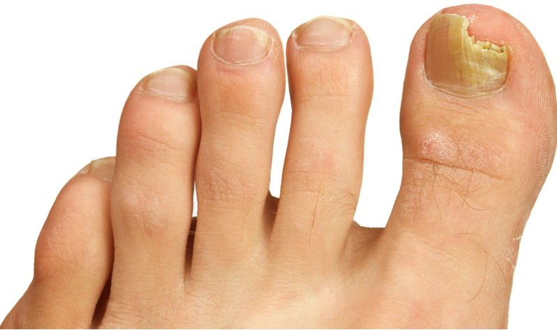 Brittle Toenails - Causes, Treatment, Home Remedies, Pictures