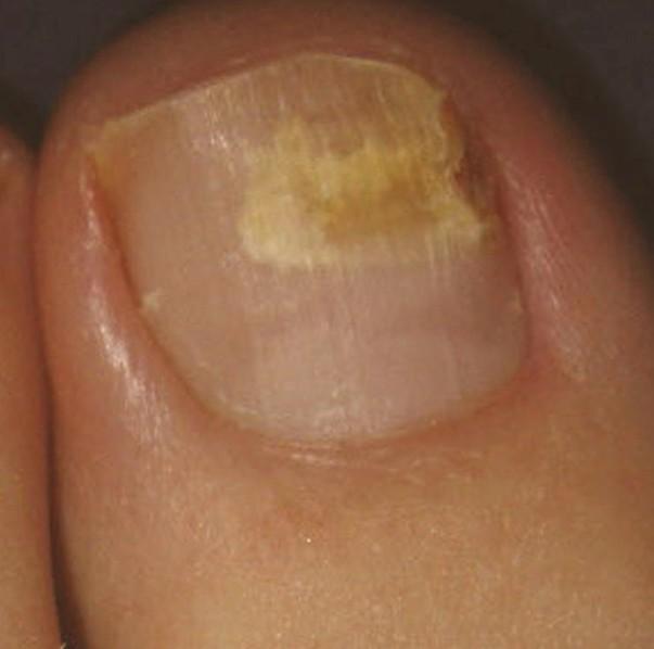 brittle toenails