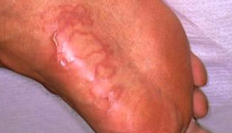 cutaneous larva migrans pictures 4