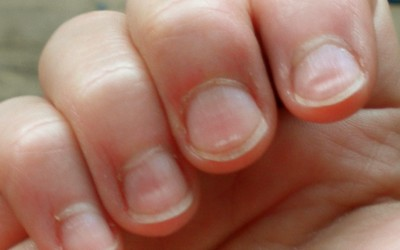 Dents In Fingernails