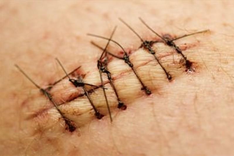 dissolvable stitches pictures 2