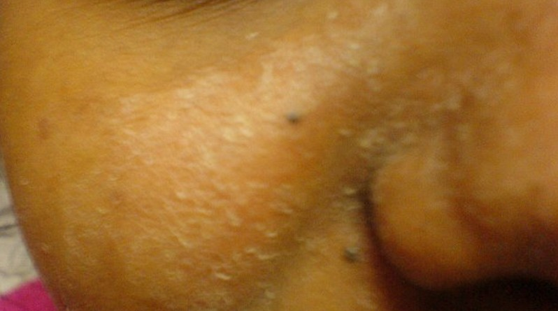 dry patches on face pictures 3
