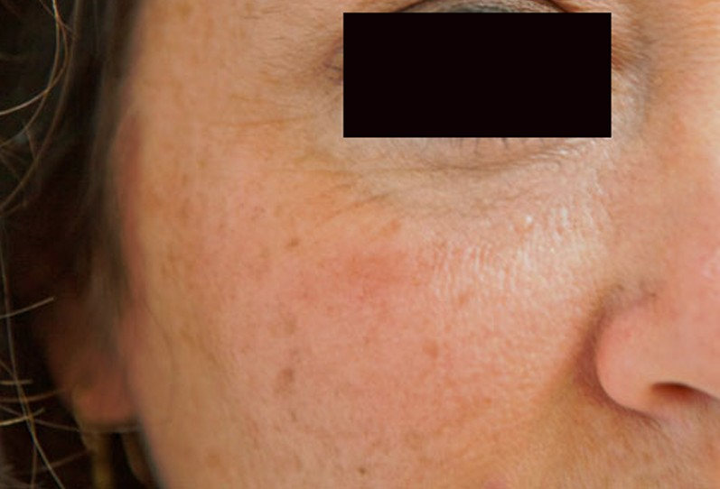 Dry Patches On Face Pictures Causes Remedies Treatment