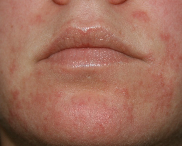 Dry Red Scaly Patches On Face