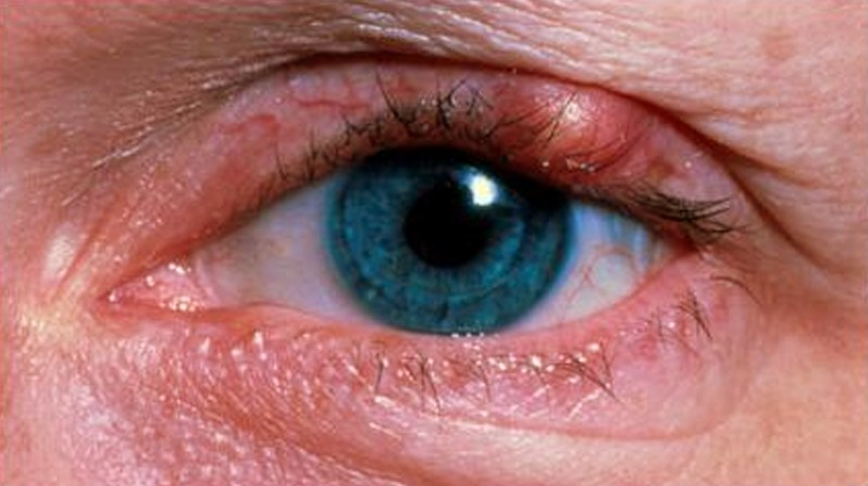 eyelid infection pictures 2
