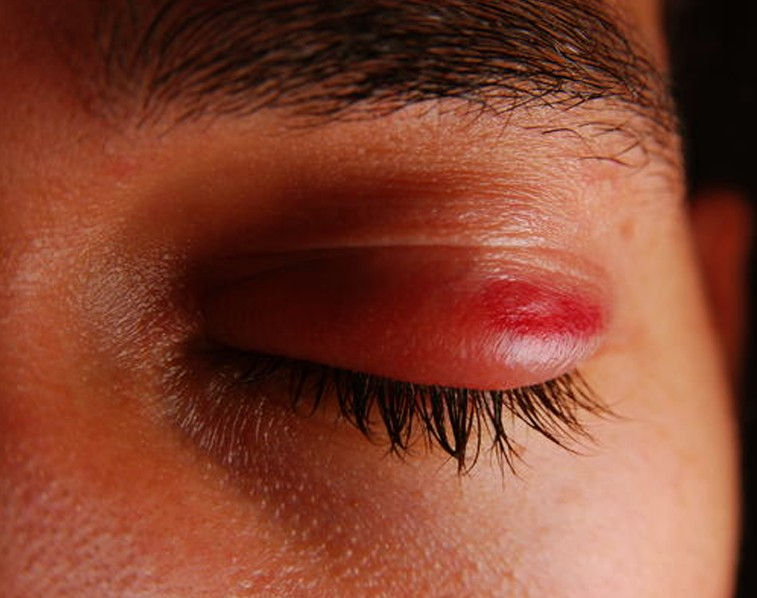eyelid infection pictures 5