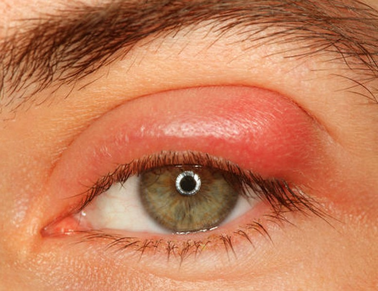 eyelid infection pictures