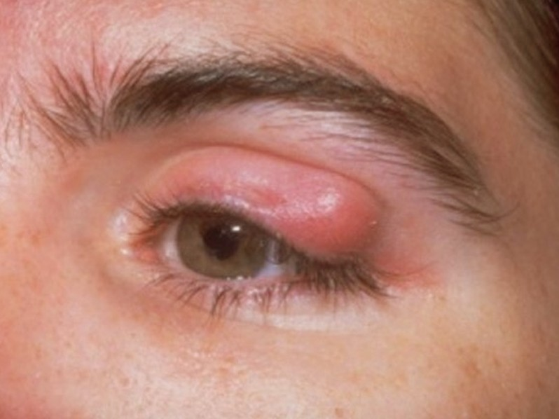 eyelid infected